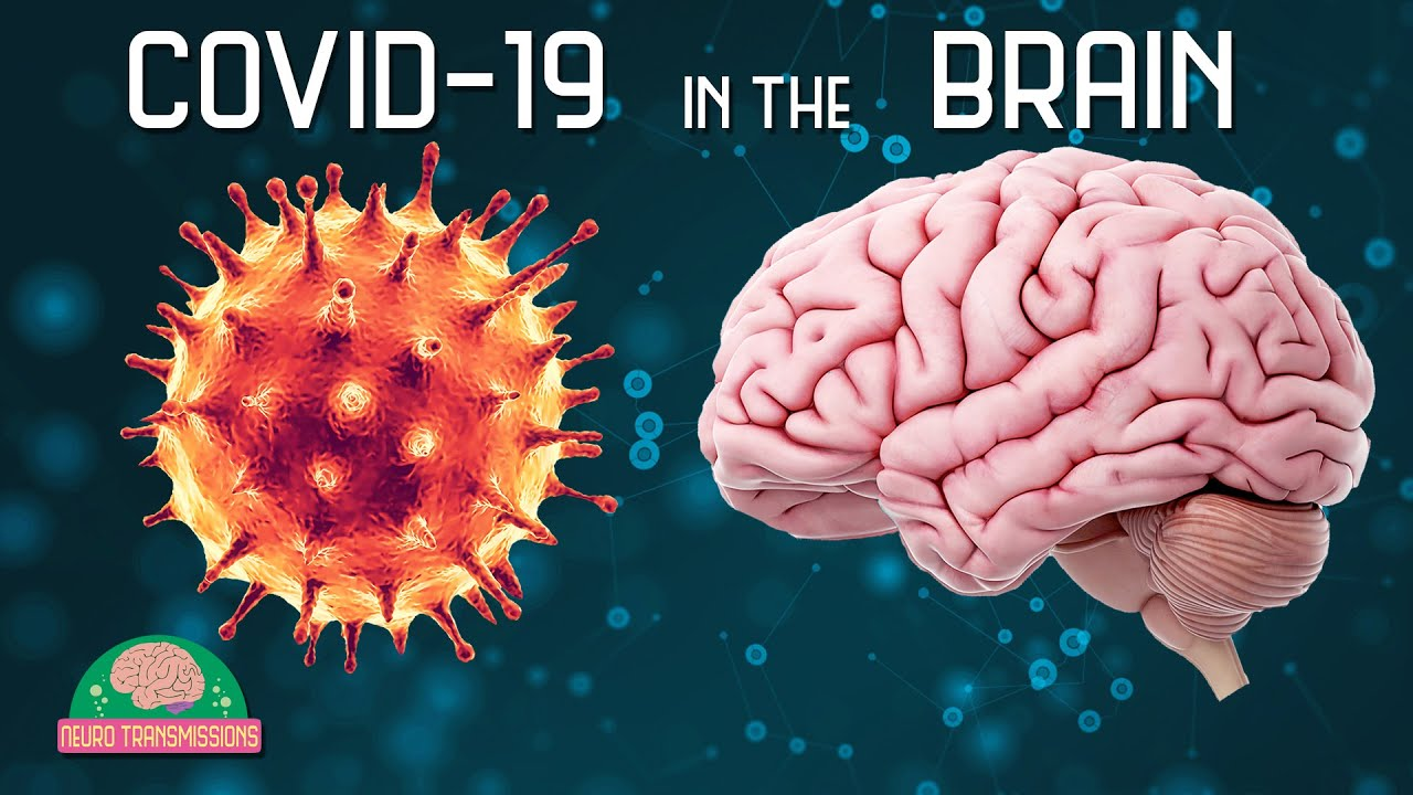 Bad News: One-third of COVID-19 Cured Patients Have Brain Disease